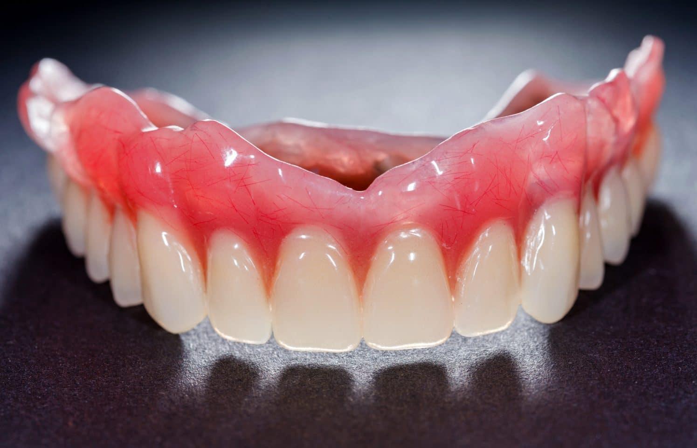 Kết quả hình ảnh cho preservation of removable dentures